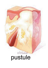 pus filled pimple